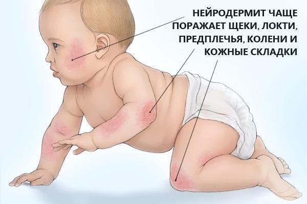 Локализация нейродермита у детей