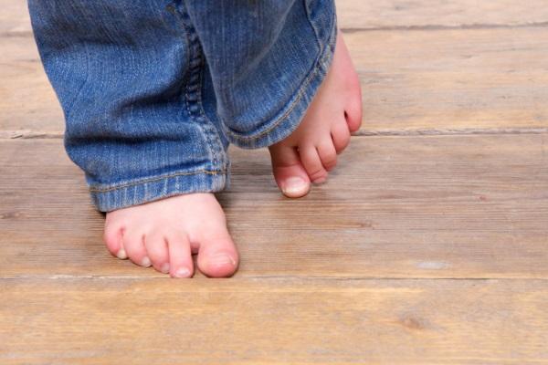 Шипига на стопе у ребенка причины